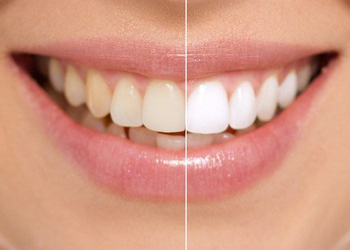 Dds inc news its easier to face the world with a good looking smile and proper dental hygiene including teeth whitening can have a positive impact on your solutioingenieria Images